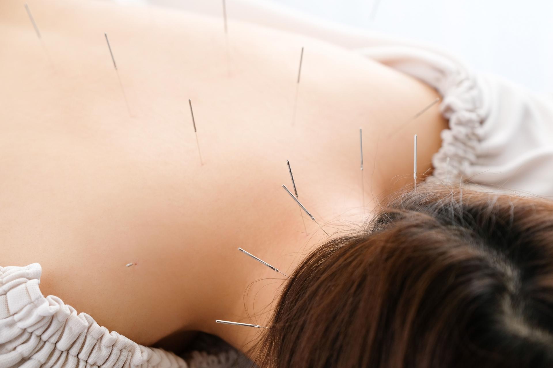 さいたま市で肩こり腰痛におすすめの鍼灸治療院5選【口コミで評判】