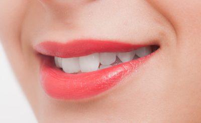 新越谷・南越谷駅近くにある歯のホワイトニングをしている歯医者さん3選