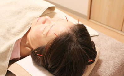 【鍼灸・美容鍼に対応】熊谷市の「美容鍼灸サロン Sunny」